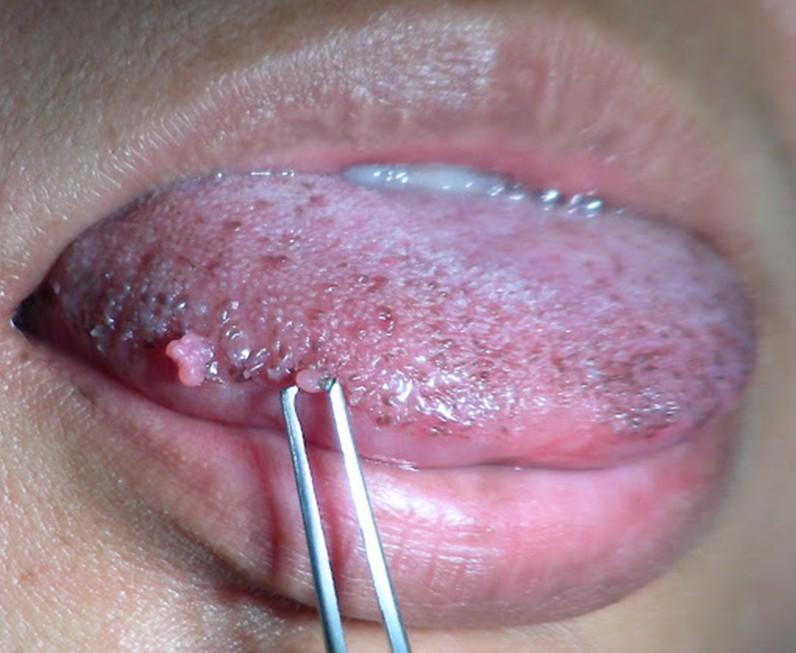 Hình ảnh mụn cóc sinh dục ở miệng, lưỡi