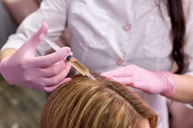 Điều trị mụn cóc trên da đầu