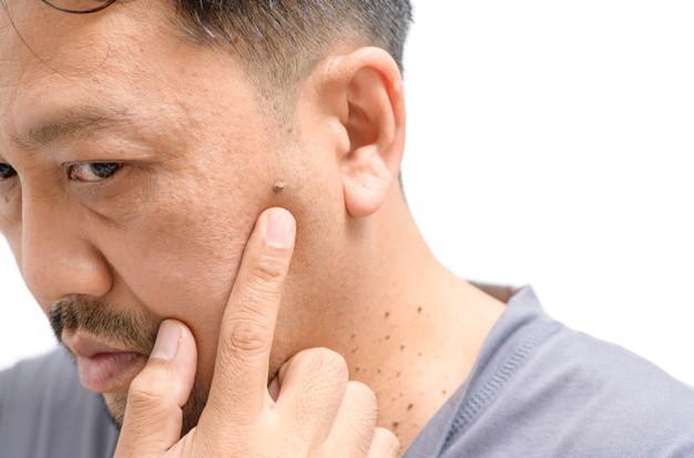 Mụn cóc trên mặt là do virus HPV gây ra