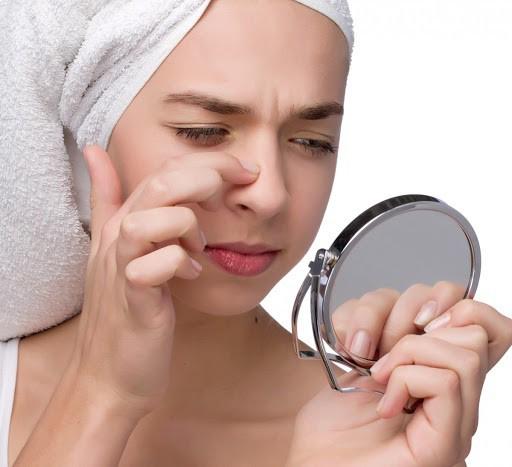 Trị mụn đầu đen ở mũi bằng kem đánh răng có thật sự hiệu quả không?