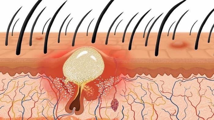 Nguyên nhân gây mụn trứng cá trên da đầu