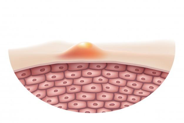 Nguyên nhân mụn đầu đen do các tuyến bã nhờn hoạt động nhiều