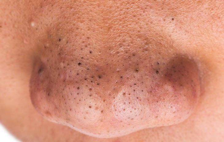 Nguyên nhân gây mụn đầu đen ở mũi
