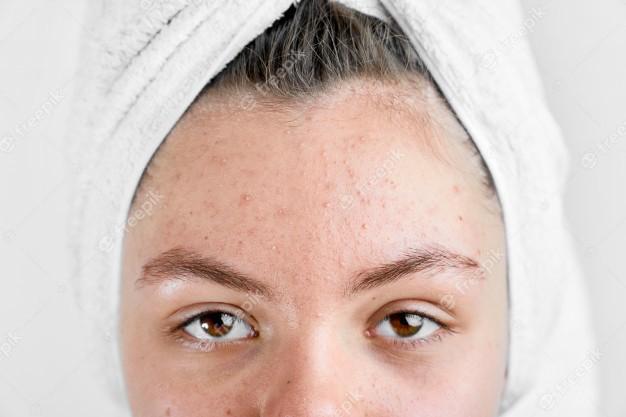 Tác dụng trị mụn đầu đen của BHA cho da dầu mụn