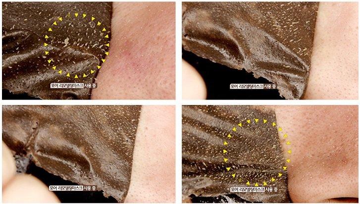 Công dụng bút lột mụn đầu đen Pore Remodeling Mask