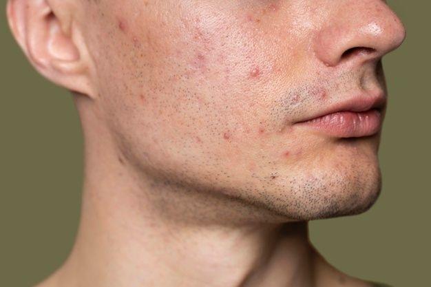 Nguyên nhân mụn cám mụn đầu đen ẩn dưới da