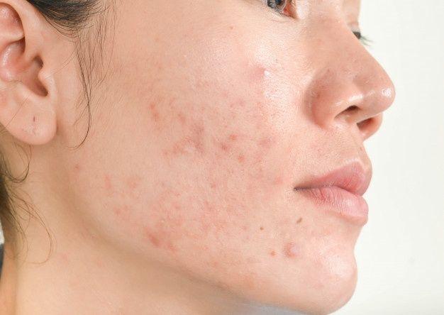 Nguyên nhân gây mụn đầu đen ở mặt, mũi cằm và cơ thể
