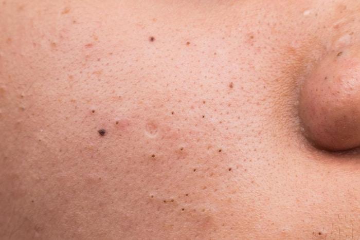 Tại sao có chuyện mụn đầu đen thành nốt ruồi?