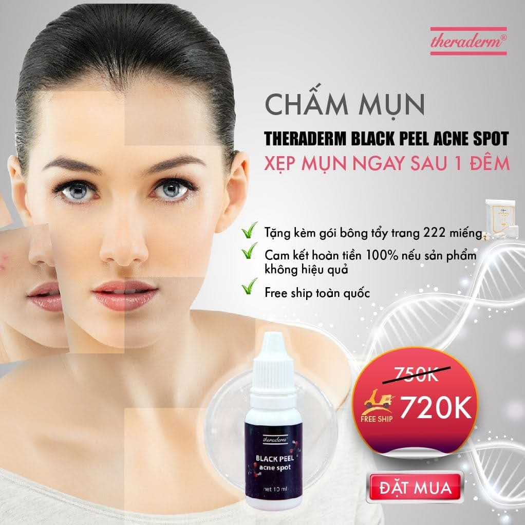 Serum trị mụn Theraderm Black Peel Acne Spot giá bao nhiêu?