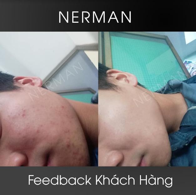 Combo kem trị mụn Nerman Review