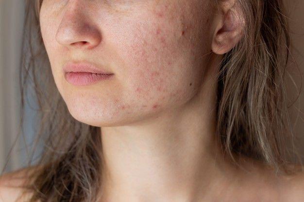 Đẩy mụn ẩn dưới da là gì?