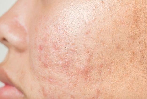 Hình ảnh mụn ẩn dưới da