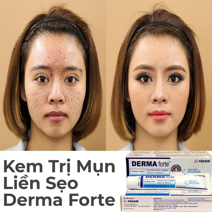 Review kem trị mụn Derma Forte có tốt không? Giá bao nhiêu?